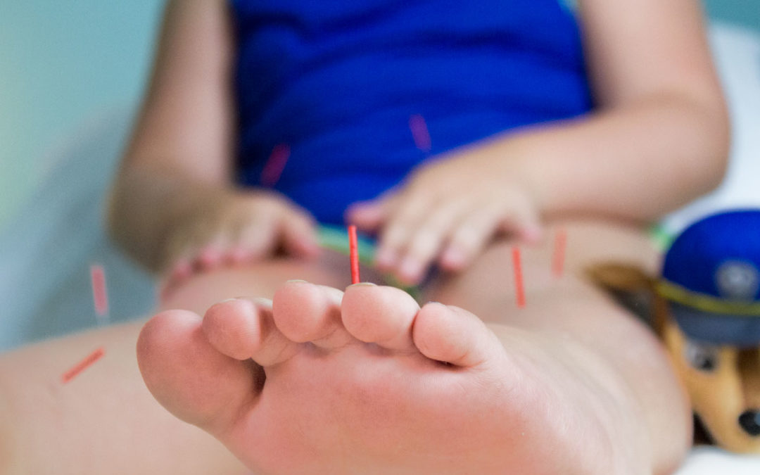 Treating Childhood Eczema with Acupuncture and Herbs